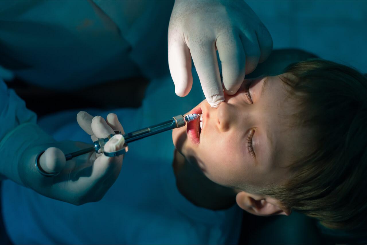 general anesthesia for toddler dental work