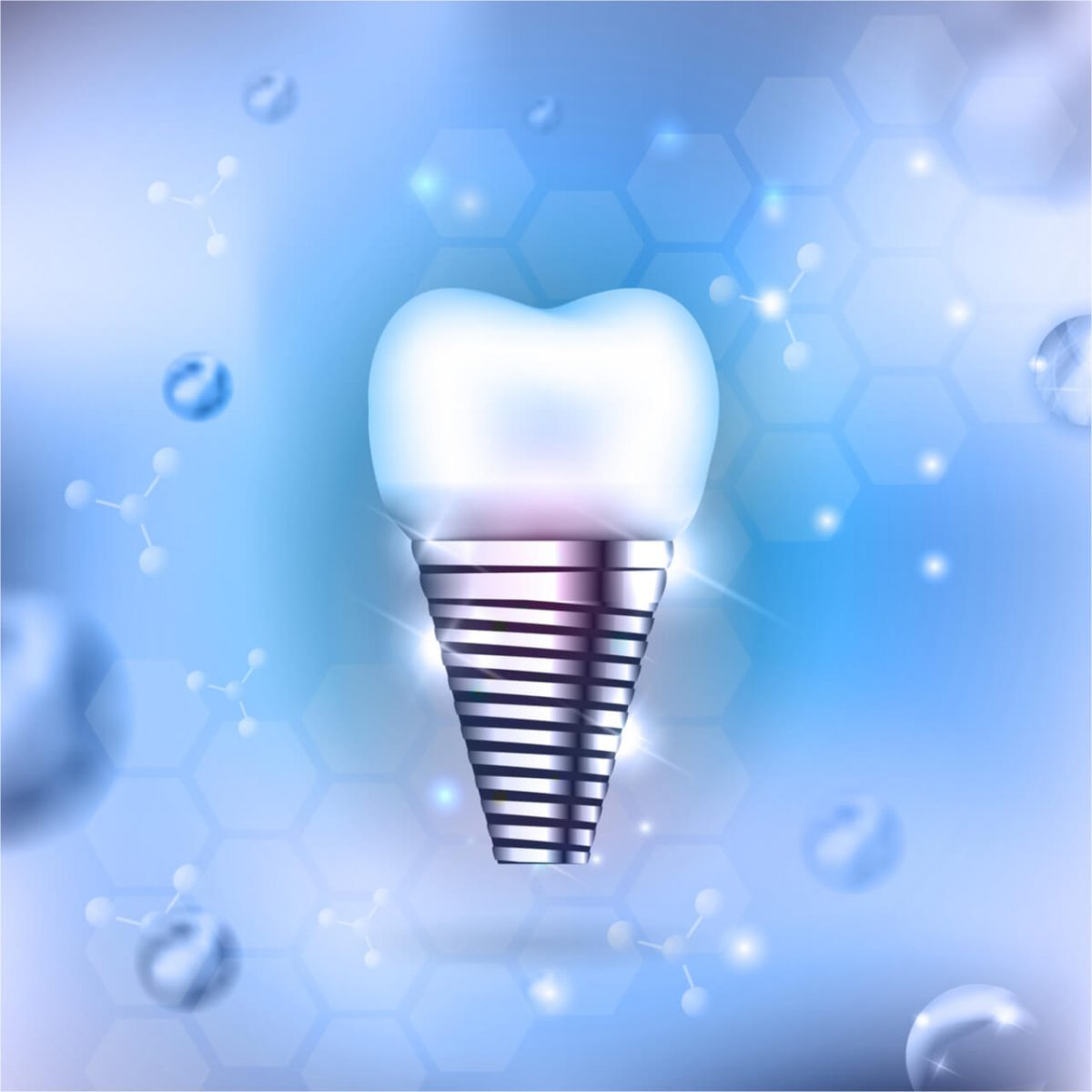 what is a mini tooth implant
