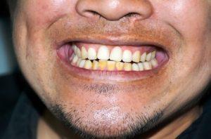 best antibiotic for gum infection