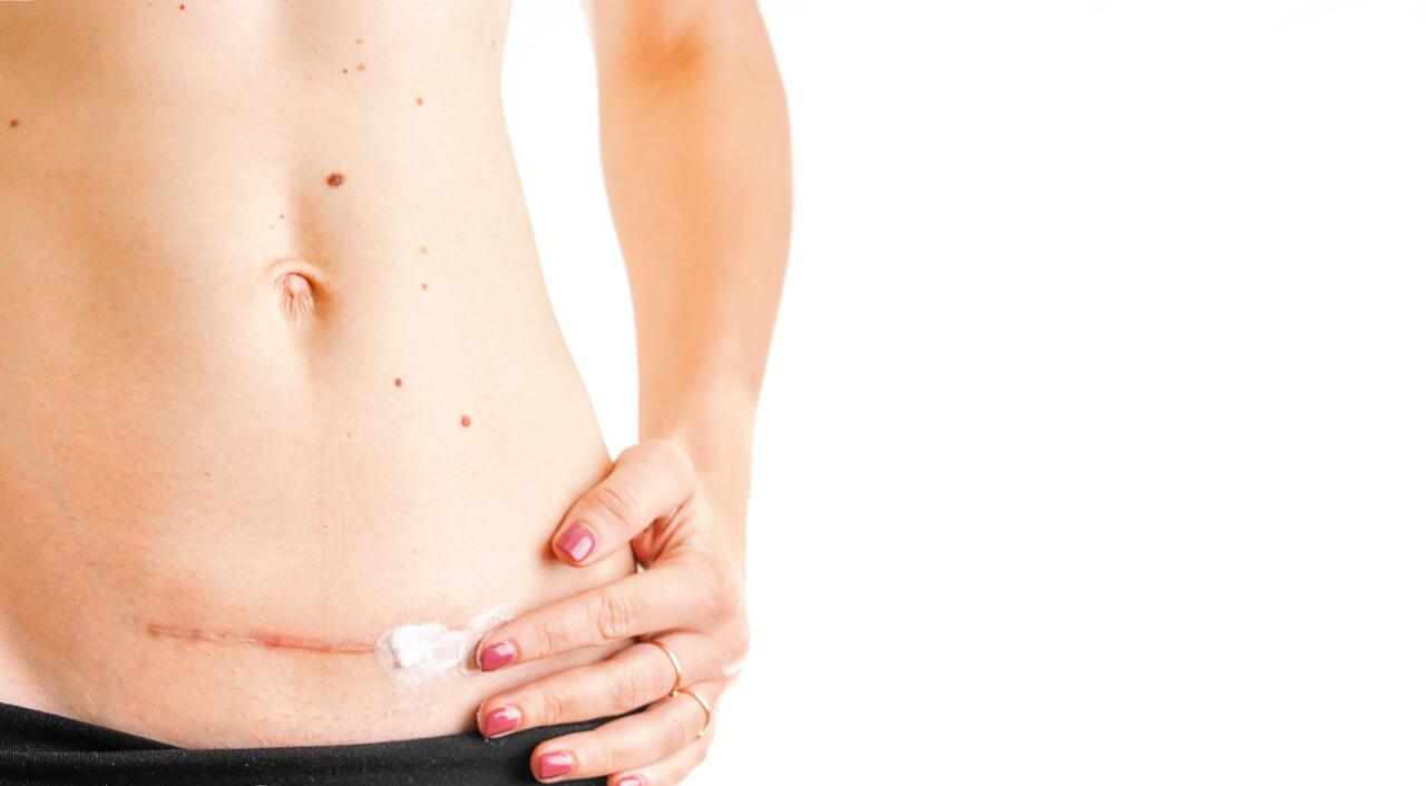 Are derma creams for scars safe?