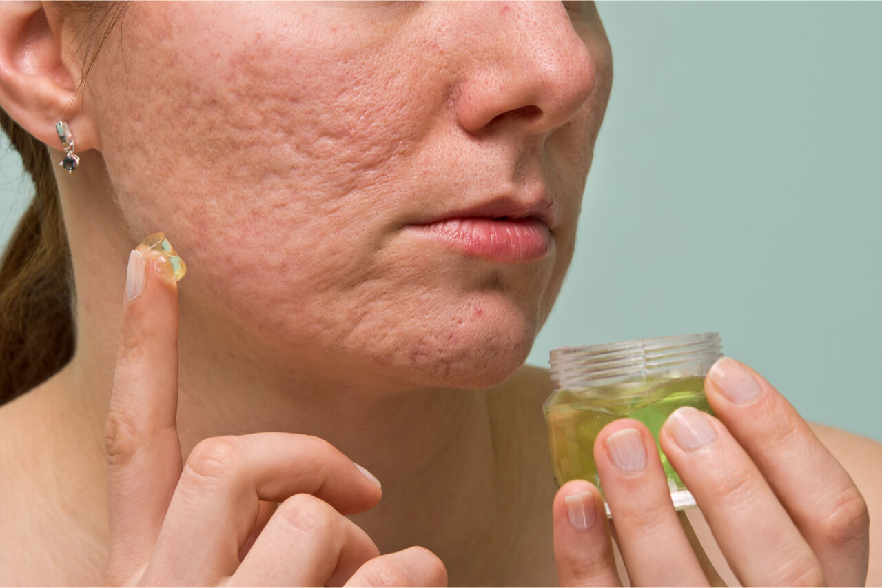 Is silicone scar gel effective on surgery scars?