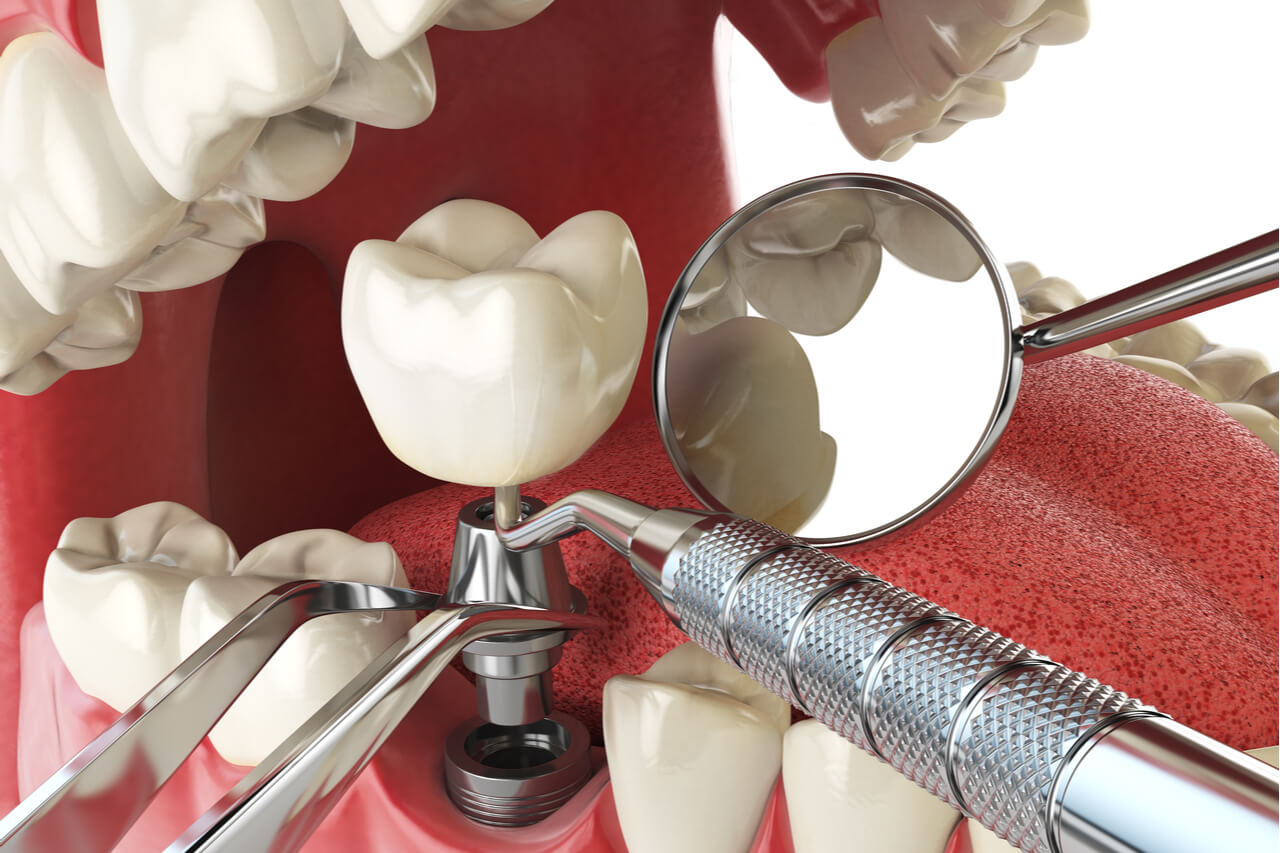 The innovation of Dentium implants