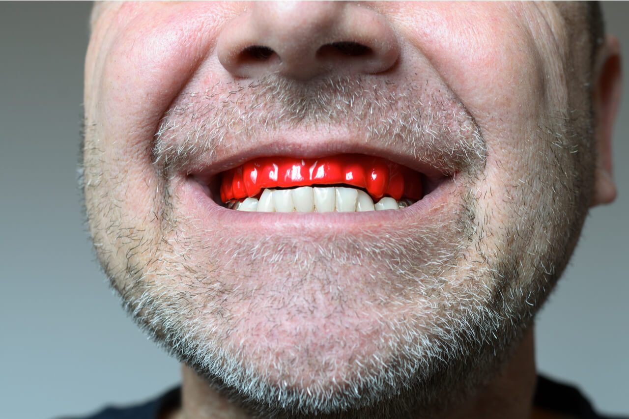 The best over the counter mouth guards for teeth grinding